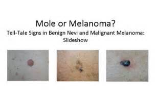 acbd diagnose skin mole picture 19