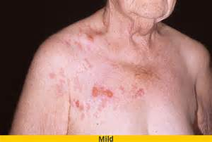 symptoms of herpes zoster picture 2