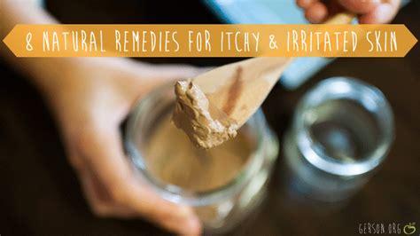 iching skin remedies picture 11
