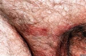belladerm penis picture 1