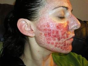 acne scar incision picture 19