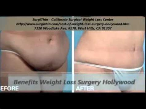 weight loss surgery in california picture 7