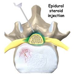 epidural pain relief picture 5