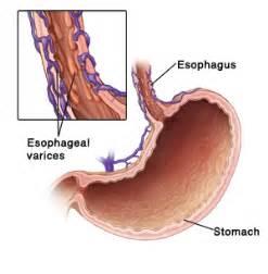 liver problems symptoms picture 5