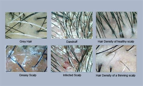 chromiun build up in scalp hair picture 1