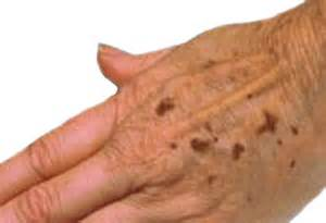 what do liver spots look like picture 6