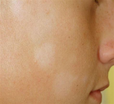fungus skin rash picture 9