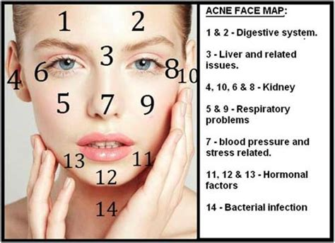 acne forehead digestion picture 10