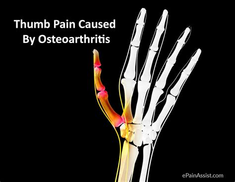 thumb joint pain picture 5