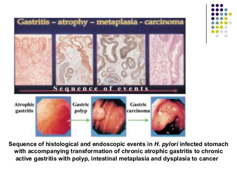 infections in h picture 5