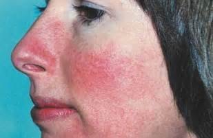 flaky skin and rosacea picture 3