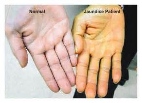 can kidney failure cause yellow skin picture 6