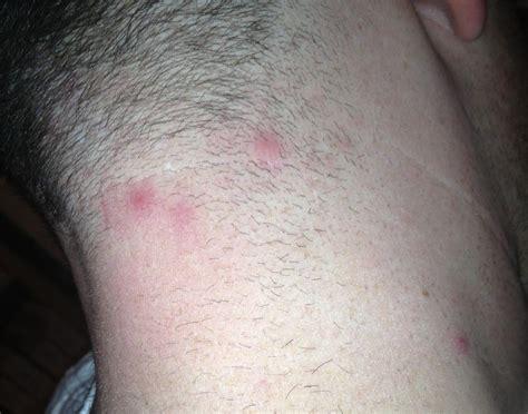 acne neck picture 17