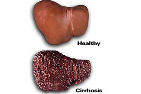 cirrhosis of the liver due to alcohol picture 6