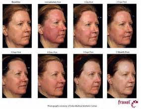 laser treatment for face day after looks like picture 2