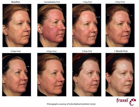 what is strongist face laser treatment in 2014 picture 2