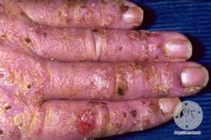 can antibiotic ointment help make a scalp pillar picture 11