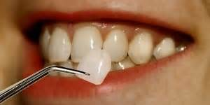 can dental hygienist remove cement from teeth with picture 3