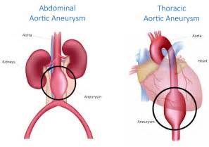 gastrointestinal bleeding ociated with aortic aneurysm picture 3
