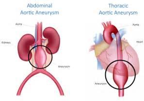 Aneurysm highl blood pressure picture 21