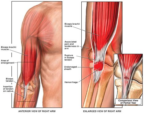 bicep muscle pain picture 1
