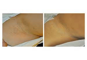 cellulite removial picture 3