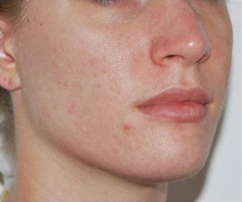 chemical l acne picture 2