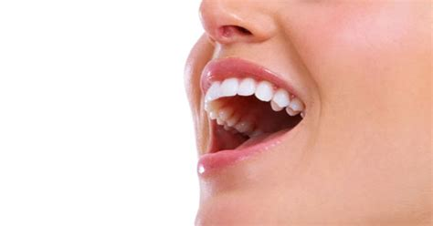 cheapest cosmetic teeth picture 2