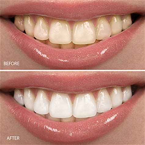 columbia teeth whitening picture 21