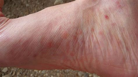 dry skin boils between legs picture 2
