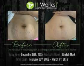 before and after stretch marks picture 3