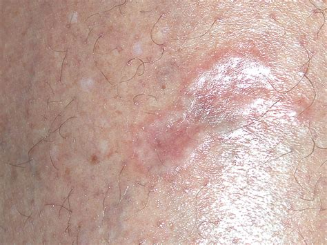 basal skin cancer picture 5