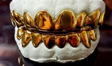 gold teeth grills picture 11