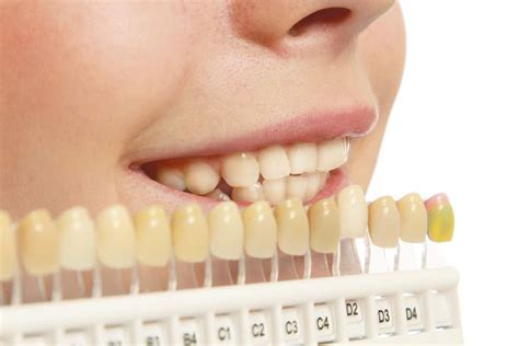 what kind of lip gloss can make your teeth whiter picture 4