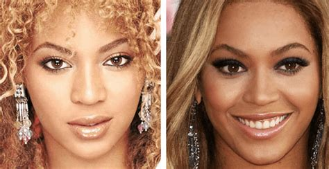 beyonce bleached skin picture 9