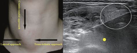 alcohol ablation for thyroid cancer picture 13