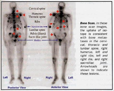 full bladder on a bone scan picture 6
