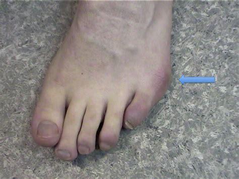 buni treatment picture 14