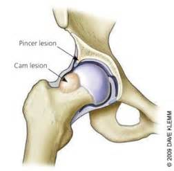 joint impingement syndrome picture 14