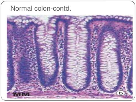 colon contactions picture 2