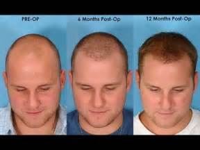 how to reduce brasy hair home remidies picture 1
