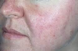 hives nopal picture 11