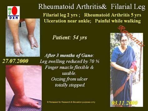 arthro tx supplement picture 2