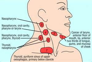 lymph nodes back of neck from acne picture 6