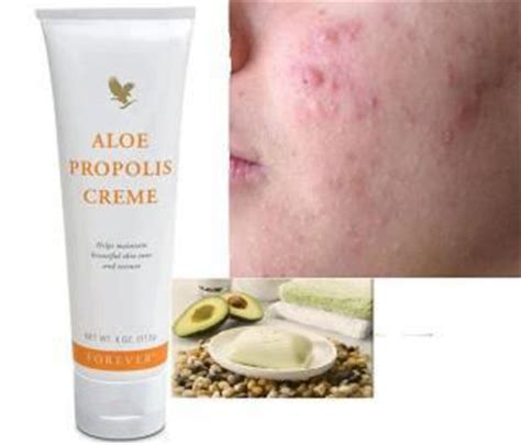 aloe and acne picture 13