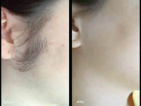 hair removal picture 1