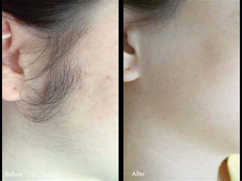 can you remove remove hair with iodine and picture 6