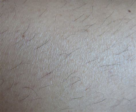finally free permanent hair removal reviews picture 11