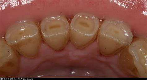 back of the front teeth picture 5