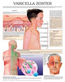 is herpes zoster contagious picture 5